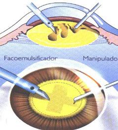 cirugía de cataratas en Córdoba